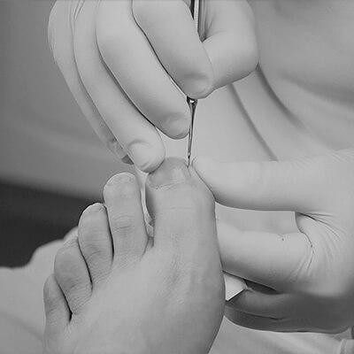 Jalkahoitola Varvaspiste Kuusankoski - jalkojen hyvinvointi Kouvola